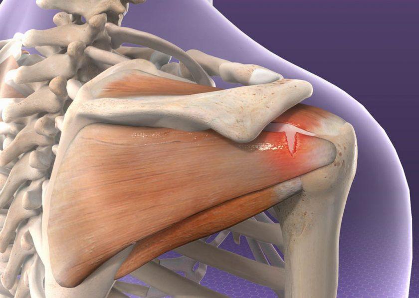 Clinica della spalla